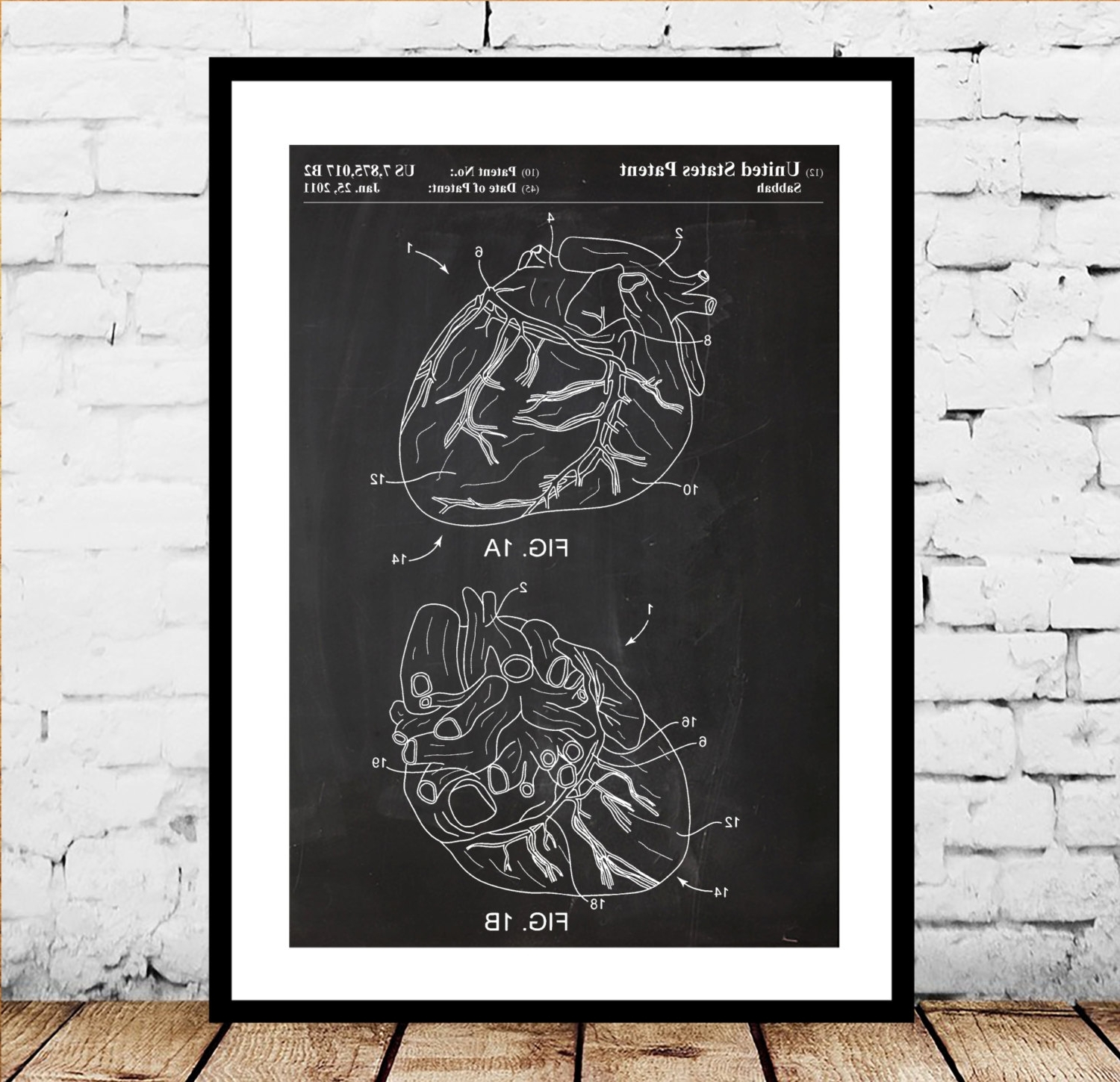 Cardiology Print, Heart Patent, Heart Poster, Heart Decor, Heart With Most Popular Medical Wall Art (View 4 of 15)